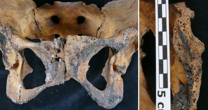 Antik Mısır Jinekolojik Tedavi