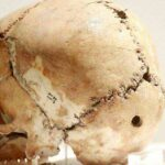 tarihin ilk beyin ameliyatı kafatası aşıklı höyük