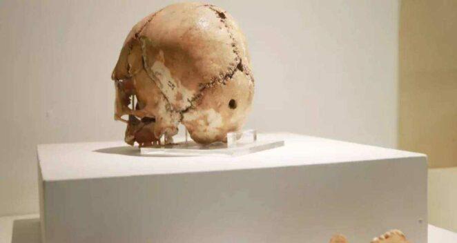 tarihin ilk beyin ameliyatı aşıklı höyük